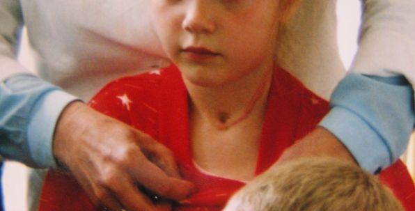 ベラルーシの女の子の甲状腺がん手術跡(1993年の写真)